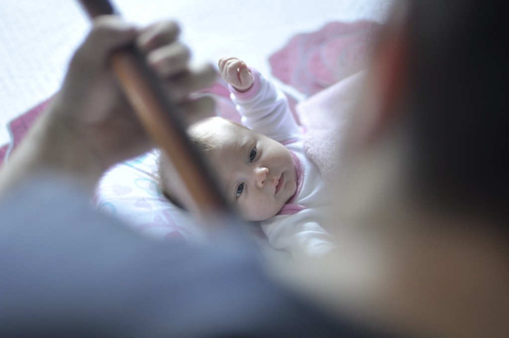 espina-bifida-niños